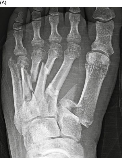 Fractures and dislocations of the metatarsals and toes ...