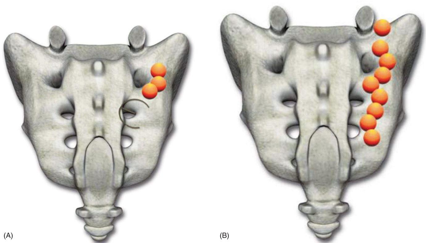 Sacroiliac Joint Denervation Using Synergy System | Anesthesia Key