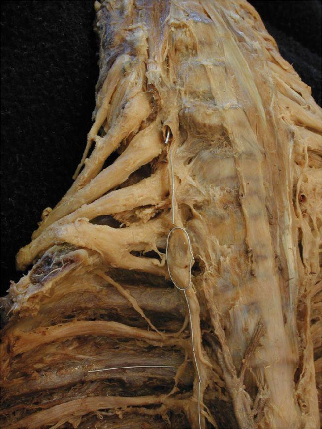 Stellate ganglion anatomy