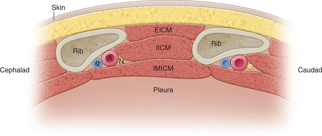 Intercostal Nerve Block | Anesthesia Key