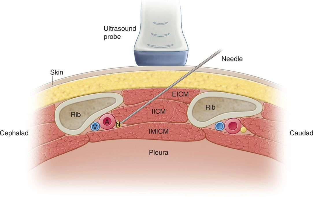 Intercostal Nerve Block Anesthesia Key