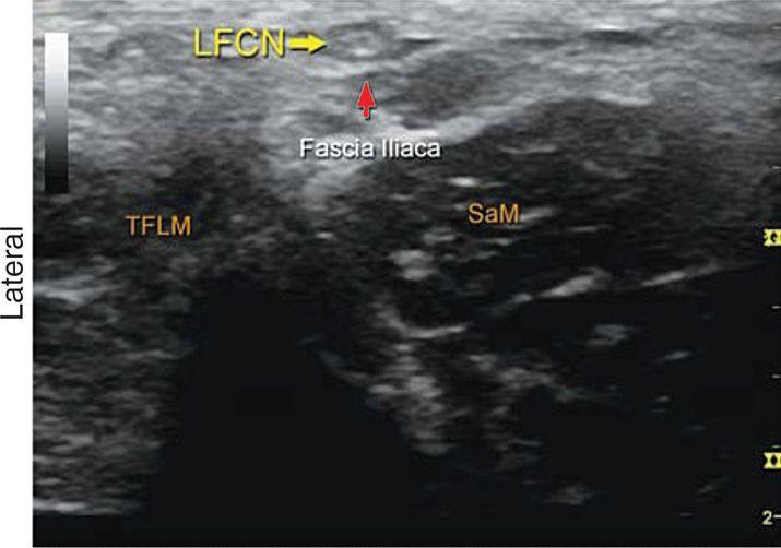 femoral nerve ultrasound – citybeauty, Muscles