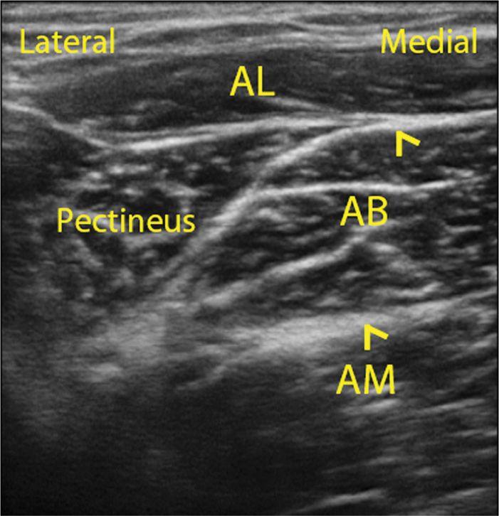 ultrasound guided obturator nerve block