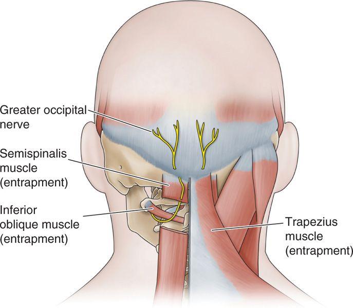 Cryoneuroablation | Anesthesia Key