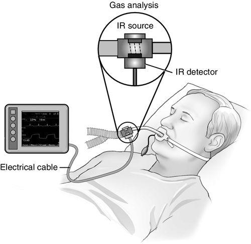 Capnography Monitoring | Anesthesia Key