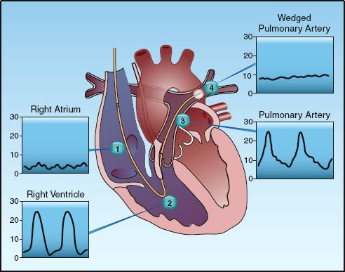 figure 8 2 the pressure waveforms at different points along the normal  course of a pulmonary artery catheter  these waveforms are used to identify  the