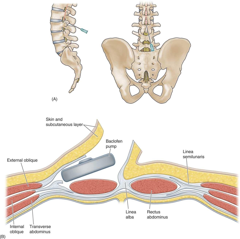 Permanent Implant   Anesthesia Key
