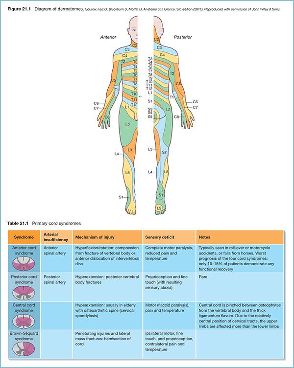Spinal Injuries Anesthesia Key